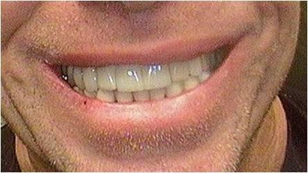 124_Implants10-2