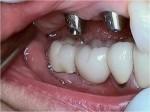124_Implants11-1