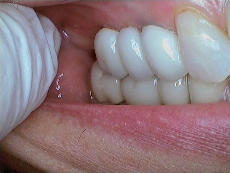 124_Implants11-2