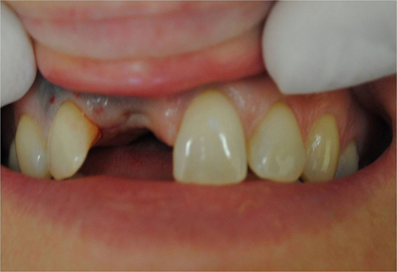 124_Implants5-1