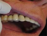 124_Implants7-2