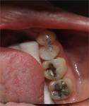 124_PosteriorComposites1-1